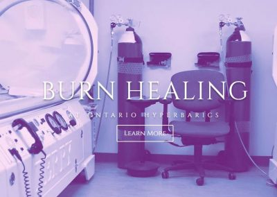 Burn Healing At Ontario